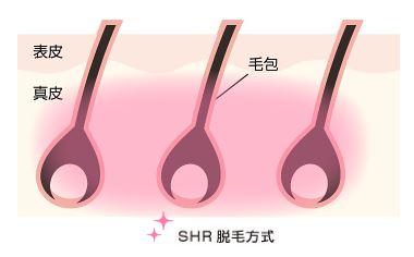 SHR脱毛