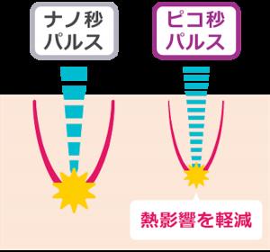 シミ治療ピコレーザーの特徴